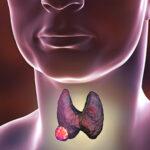 Tiroid Nodülü ve Tedavisi